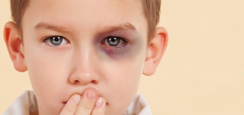 Blåt øje - hjernen får et blåt øje - Mybodyandmind 1500x